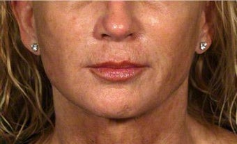 Sculptra, Juvederm, Obagi after 320649