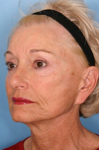 Sculptra Injections for Facial Volume Restoration  before 112985