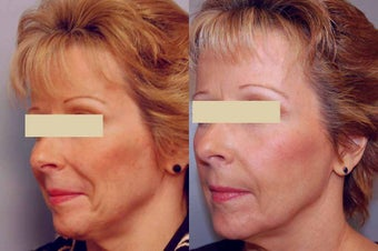Sculptra treatments before 125334