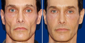Sculptra before 496295