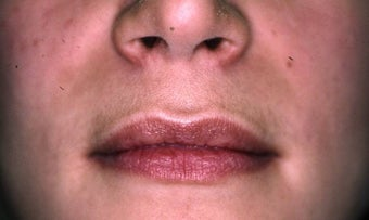 Lip Augmentation before 149213