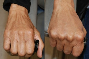 Hand Rejuvenation using Silikon-1000 before 173294