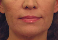 Laser Skin Tightening after 297813