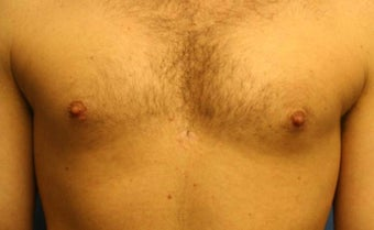 Smart-Lipo of the Chest, Liposuction, Gynecomastia after 402440
