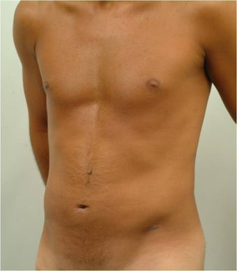 Laser Liposuction  after 459225