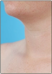 Smart Lipo, Neck Liposuction after 607447