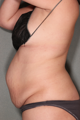 smartLipo™  before 529532