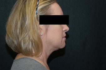 SmartLipo MPX Neck and Jowls after 367918