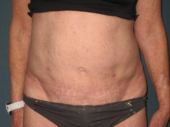 Smartlipo of the Abdomen after 461222