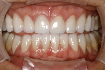Full Mouth Smilemaker after treating TMJ