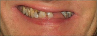 Full mouth Rehabilitation (Smile Makeover) before 390179