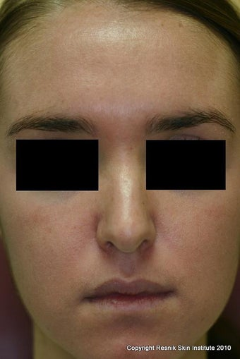 Melanage Chemical Peel for Melasma after 252824