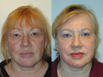 Trichloroacetic Acid Peel (TCA) and Upper Lid Blepharoplasty before 137730