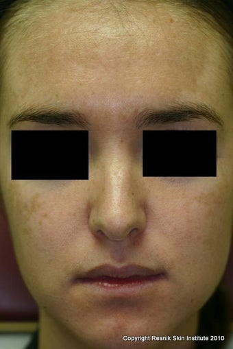 Melanage Chemical Peel for Melasma before 252824