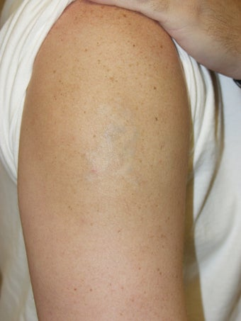 Laser tattoo removal photo from louis m dejoseph md for Atlanta tattoo removal