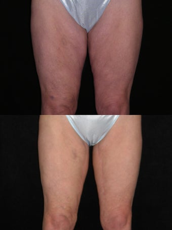 Medial thigh lift before 451944