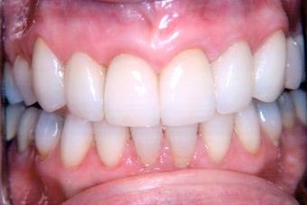 Combination of crowns, veneers, and gum surgery