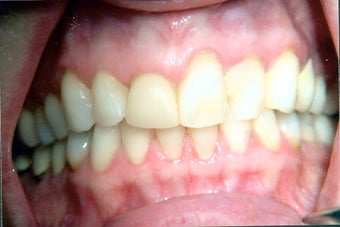 Combination of crowns, veneers, and gum surgery before 240558