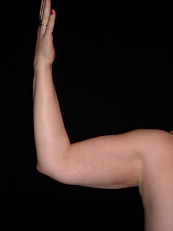 Liposuction of upper arm after 237752