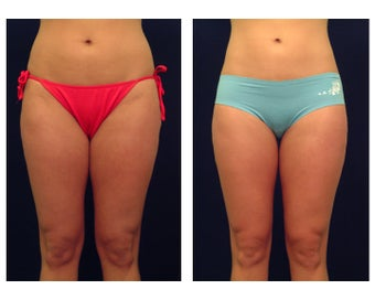 Liposuction before 286661