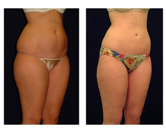 Liposuction before 286717