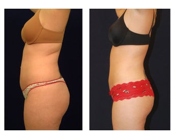 Liposuction before 286757