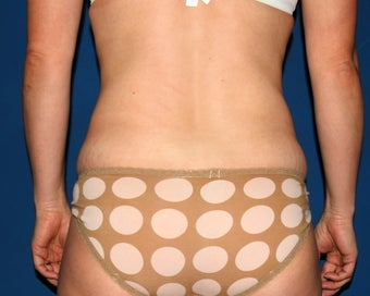 Liposuction of the Back and Abdomen before 644853