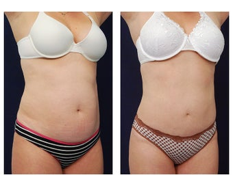 Liposuction after 391783
