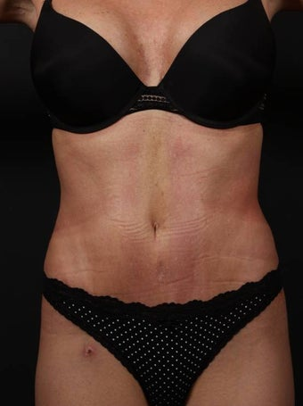 Full tummy tuck revision after 356434