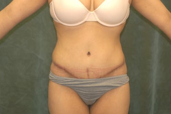 Women's Tummy Tuck Revision  after 558745