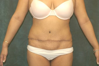 Women's Tummy Tuck Revision  before 558745