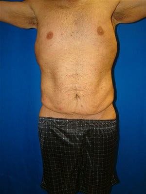 Male Tummy Tuck Surgery (abdominoplasty) Solana Beach, California before 131612