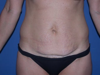Before & After Abdominoplasty before 48605