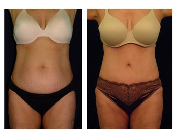 Tummy Tuck / Abdominoplasty before 54969
