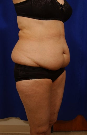 Abdominoplasty with liposculpture of abs and flanks before 82412