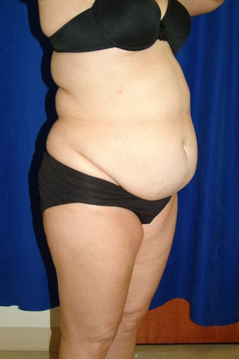 Abdominoplasty with liposculpture of abs, flanks, and waist before 82415