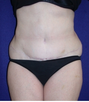 Tummy Tuck (abdominoplasty) after 208467
