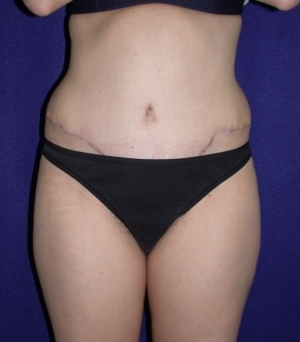 Tummy Tuck (abdominoplasty) after 208468