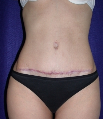 Tummy Tuck (abdominoplasty) after 208471