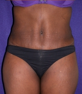 Tummy Tuck (abdominoplasty) after 208476