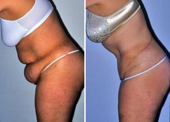 Abdominoplasty (Tummy tuck) after 330697