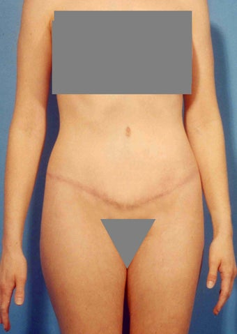 Abdominoplasty after 356352