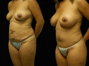 Tummy Tuck and Breast Augmentation after 392095