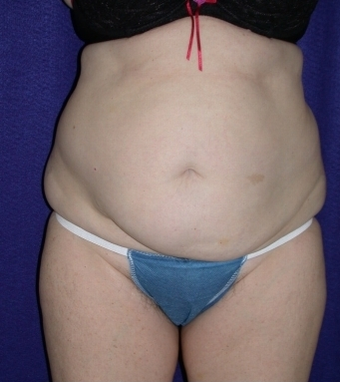 Tummy Tuck (abdominoplasty) before 208467