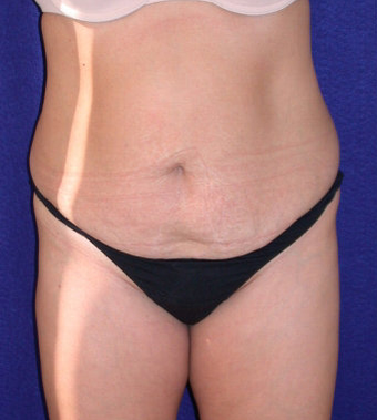 Tummy Tuck (abdominoplasty) before 208480
