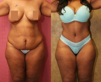 tummy tuck before 304705
