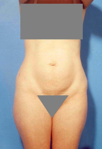 Abdominoplasty before 356352