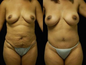 Tummy Tuck and Breast Augmentation before 392095