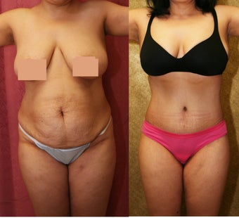 abdominoplasty- tummy tuck before 468831