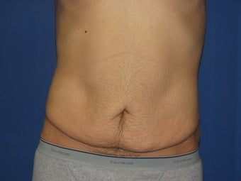 Male Tummy Tuck before 576569